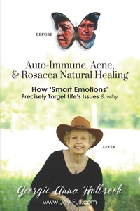Книга под заказ: «Auto-Immune, Acne, & Rosacea Natural Healing - How 'Smart Emotions' Precisely Target Life's Issues & Why»